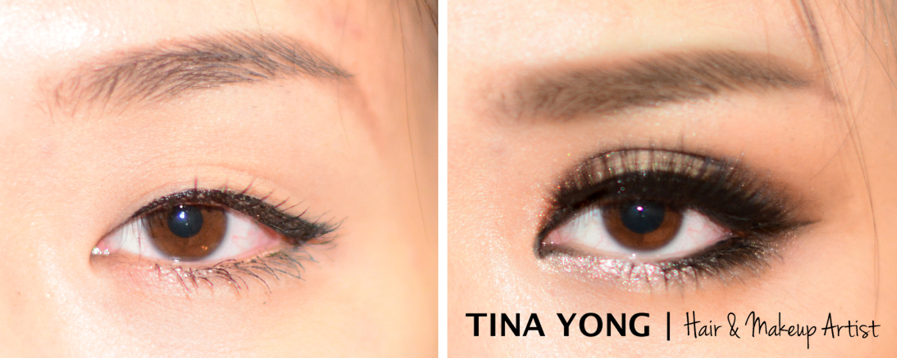 Double Eyelid Before and After | TINA YONG