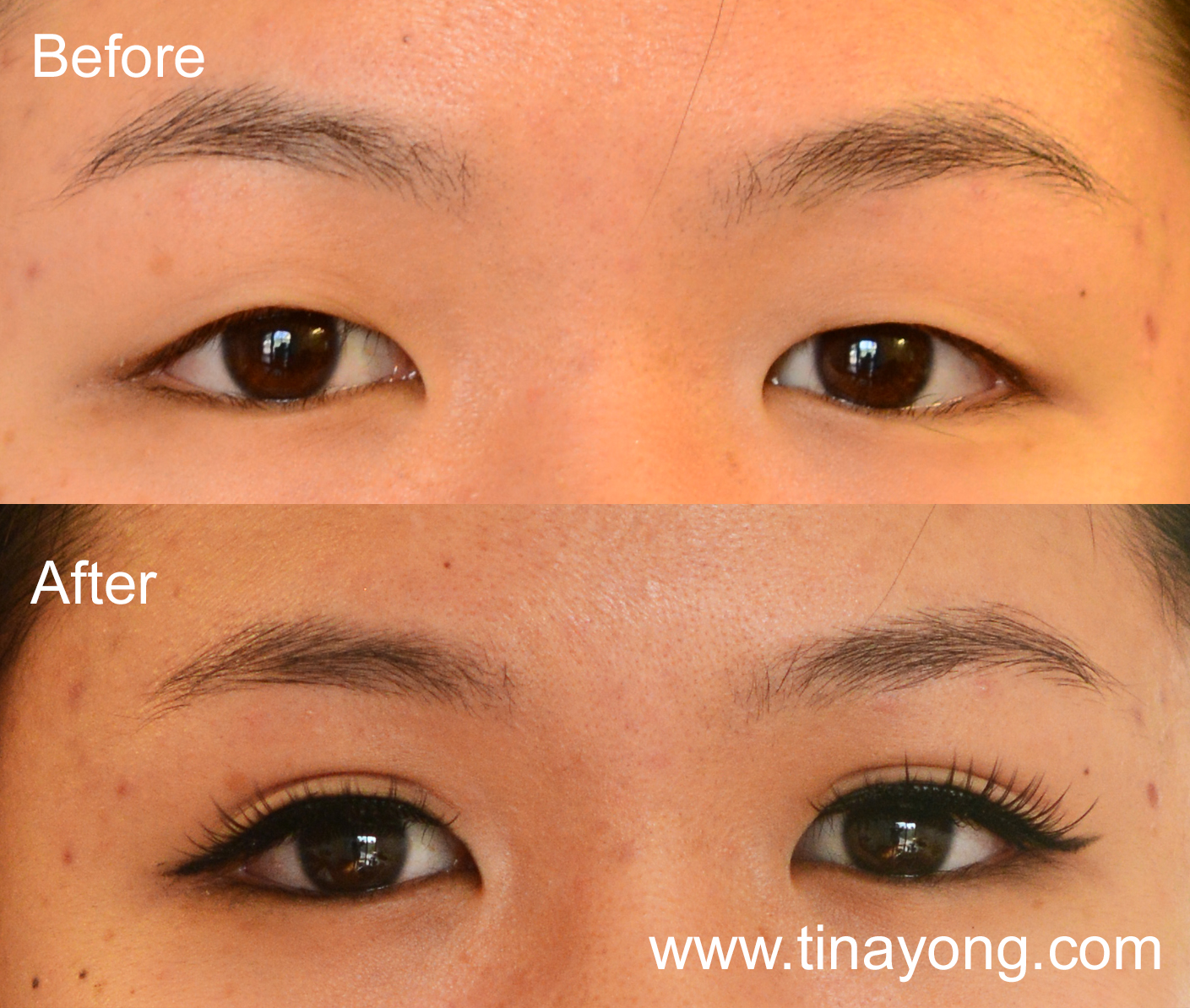 how to fix uneven eyelids : TINA YONG